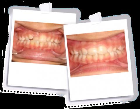 anterior-crossbite