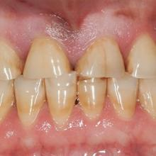 tooth wear bruxism